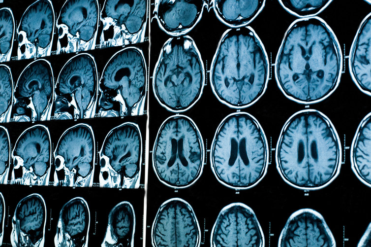 Is Addiction A Brain Disease? | IFLScience