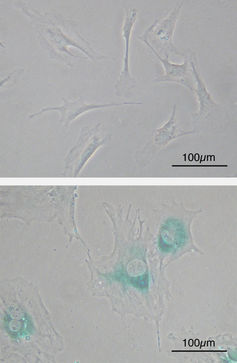 Upper image shows cells of a mouse before the accumulation of senescent cells. Lower image is after. Y tambe/wikimedia, CC BY-SA