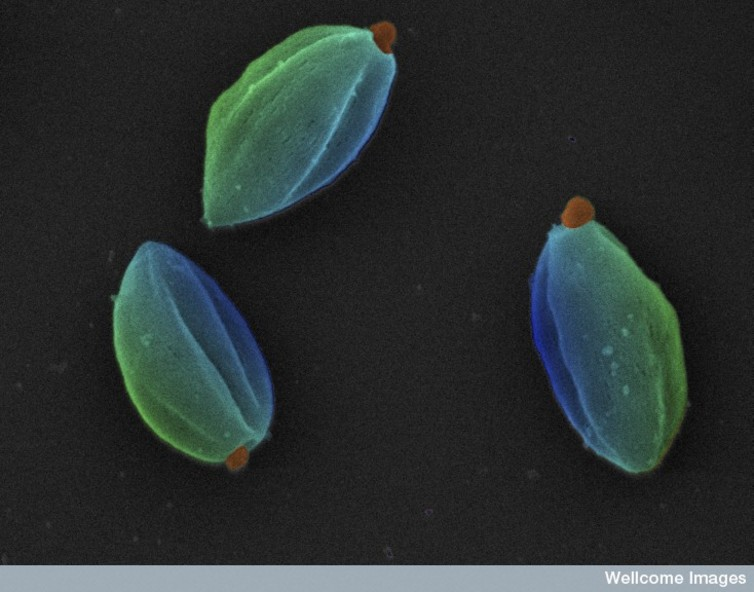 Parasites qui provoquent la leishmaniose. Wellcome Images, CC BY-NC-ND