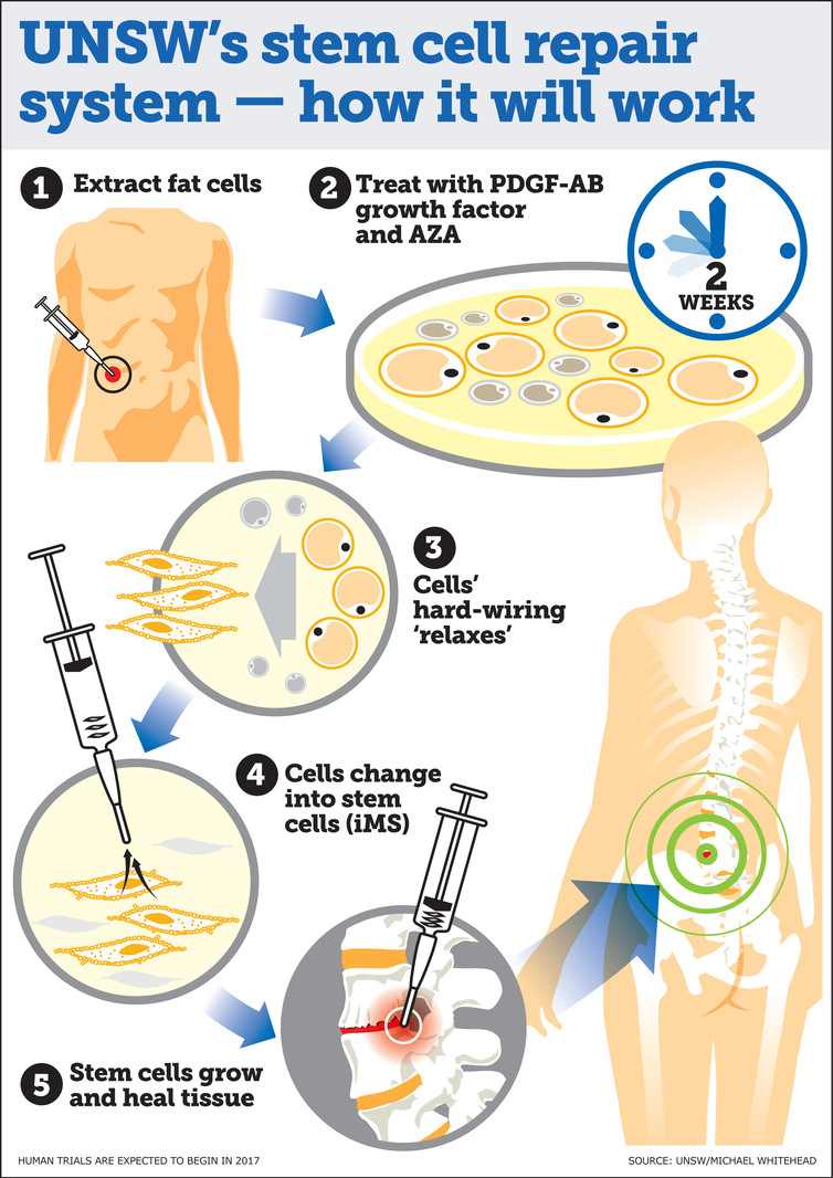 Regenerating Body Parts Fat Cells To Stem Cells To Repair Spinal