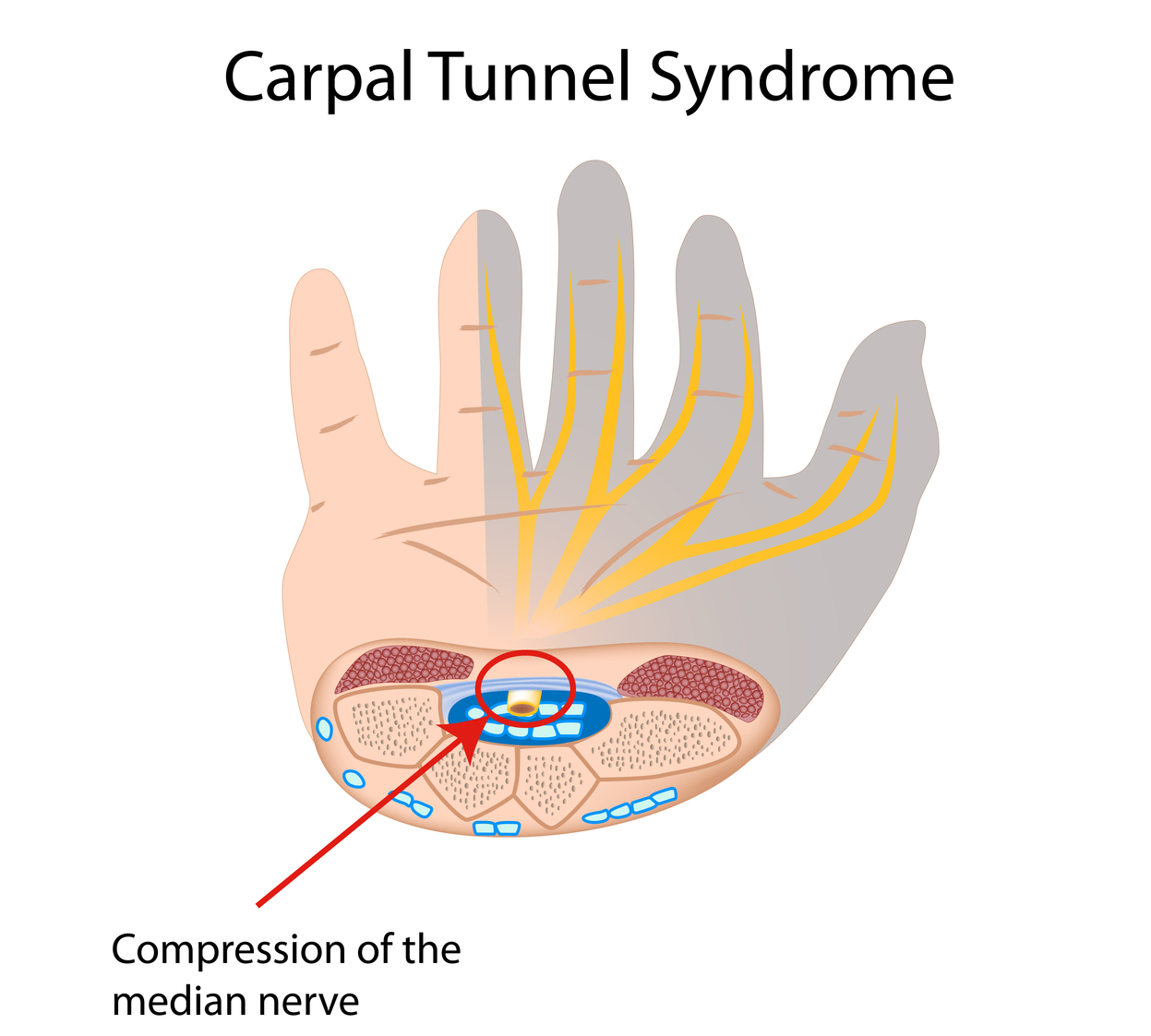 what is carpal tunnel syndrome and what happens if i get it