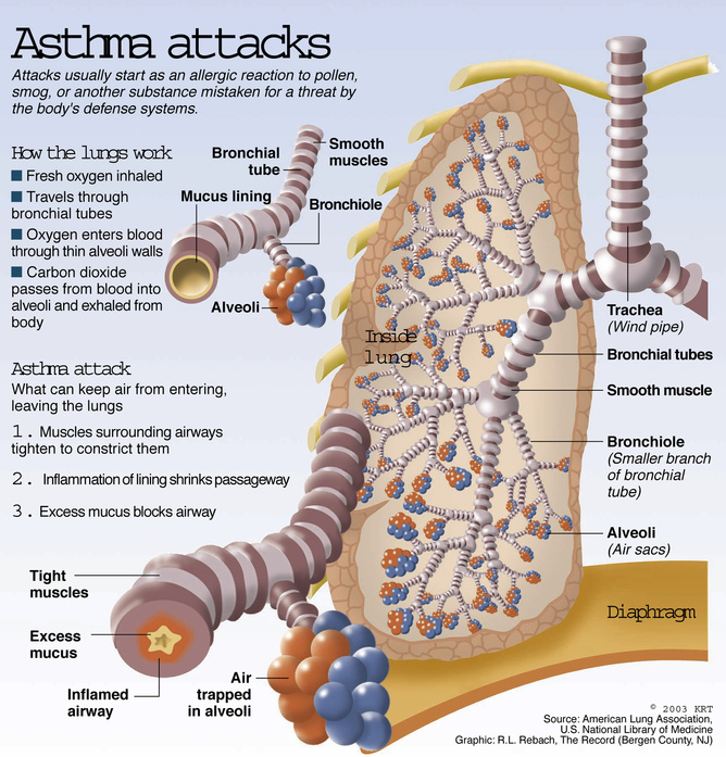For Asthma Attacks Natural Remedy For Kids