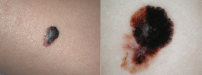 Asymmetry and color variation typical of melanoma.