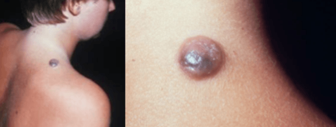 Nodular melanomas are fast-growing and aggressive.