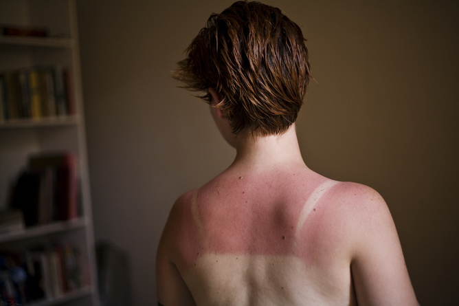 bare-woman-back-sunburn-cancer