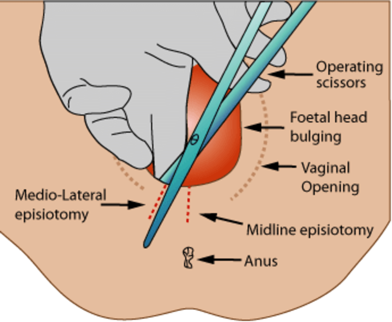 how to cut an episiotomy