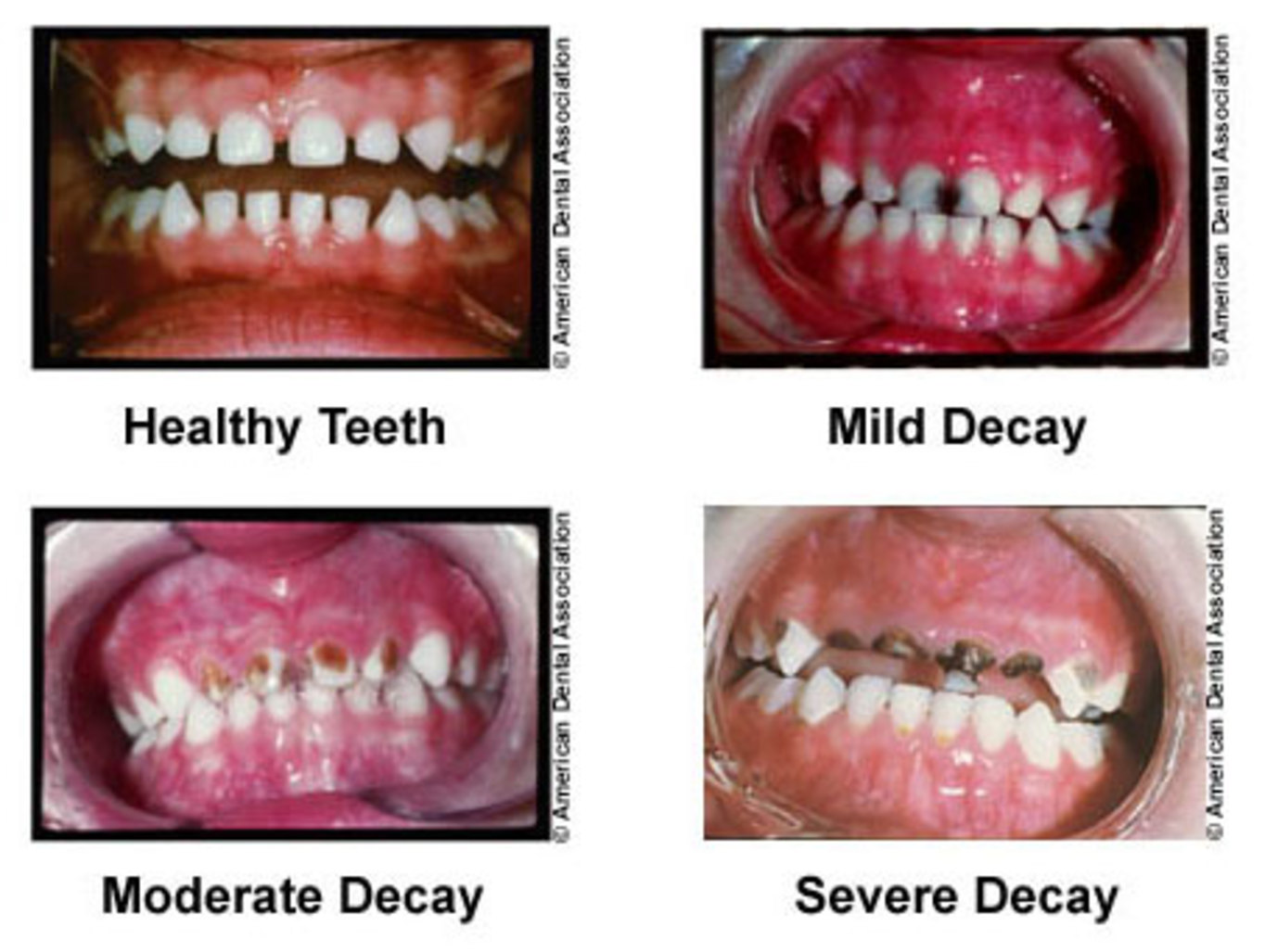 Tooth Enamel Loss at a Young Age forecasting