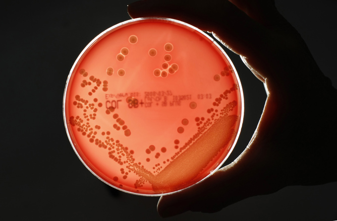 MRSA (Methicillin-resistant Staphylococcus aureus) bacteria strain is seen in a Petri dish containing agar jelly for bacterial culture in a microbiological laboratory in Berlin. Fabrizio Bensch/Reuters